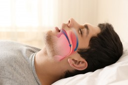 diagram man sleep apnea airway closure