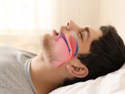diagram man sleep apnea airway closure