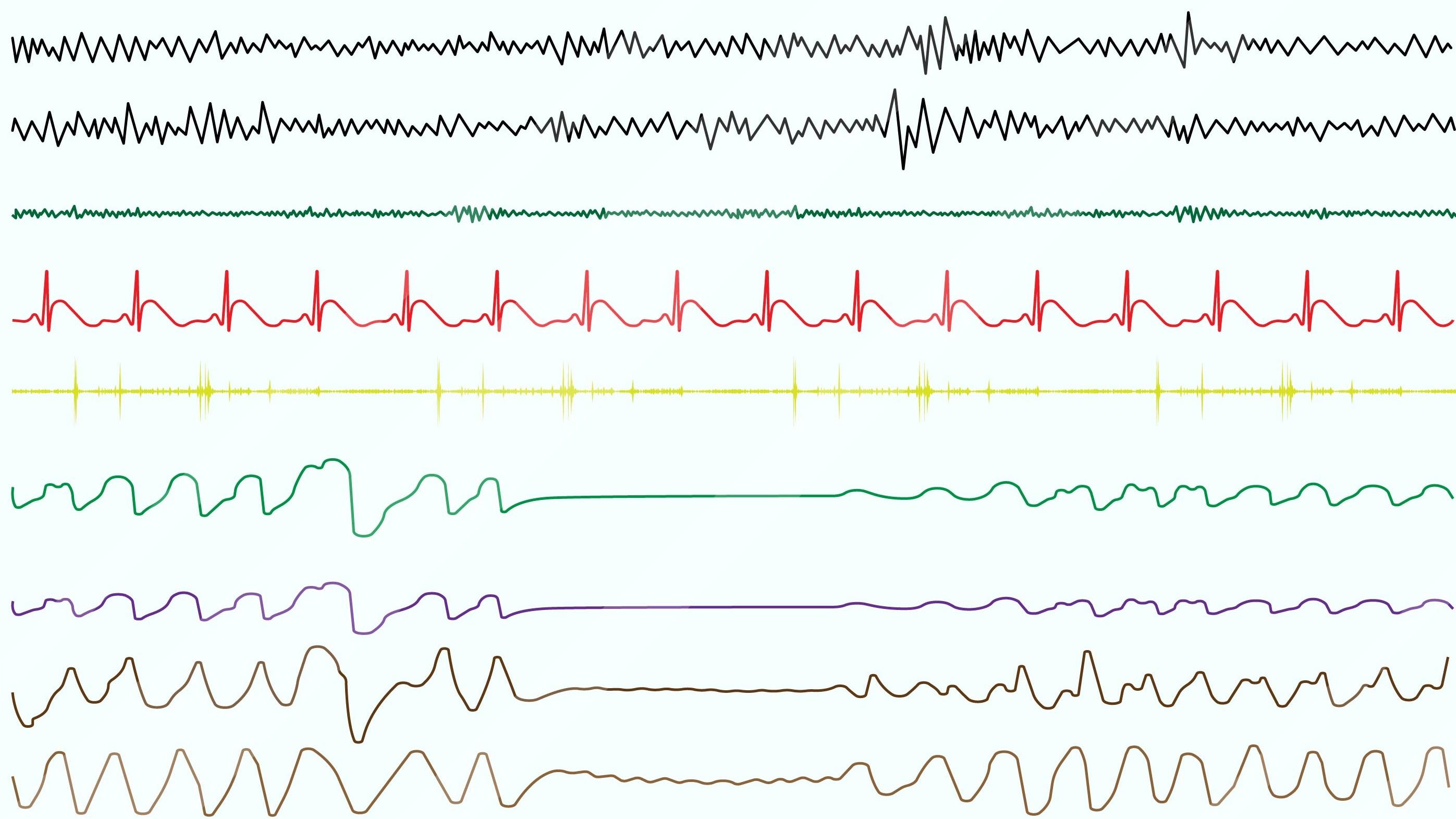 Sleep Apnea: Screening, Testing and Treatment - SnoreLab